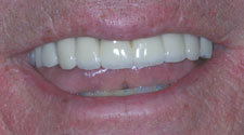 Replaced and repaired top teeth