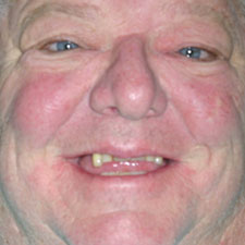 Older man with missing and damaged top teeth