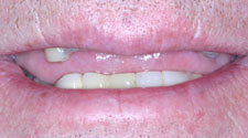 Missing and damaged top teeth