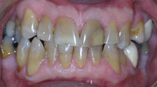 Severely discolored teeth closeup