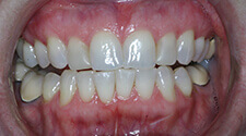 Closeup of smile before treatment