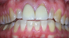 Discolored and damaged smile closeup