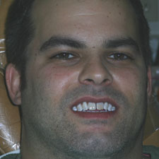 Man with discolored front teeth