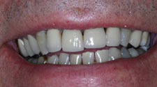 Discolored and decayed teeth closeup