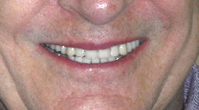 Perfectly repaired teeth